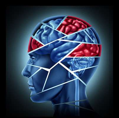Neurocog image